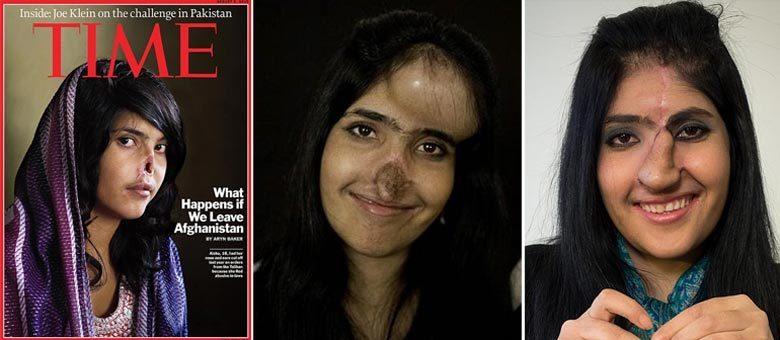 A felicidade de Aisha: há três anos a afegã foi capa da revista Time (à esq.); em dezembro (centro), ela estava no meio do processo de reconstrução; atualmente (à dir.), Aisha conta que está feliz