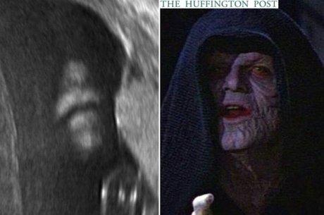 """Conheça outros """"famosos"""" que já apareceram em ultrassonografias de bebês"""