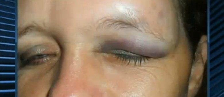 Professora é agredida por alunos e quase fica cega