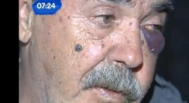 Idoso foi agredido com a própria bengala em um supermercado do Rio Grande do Sul