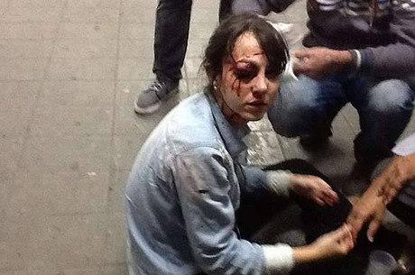 Repórter foi atingida no olho por bala de borracha