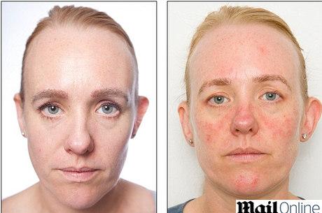 Anna envelheceu dez anos em um mês por não lavar o rosto