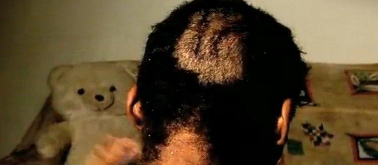 O amigo da menina estuprada conseguiu escapar, mas levou 40 pontos na cabeça por causa das agressões
