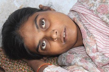 Reshma não denunciou as constantes agressões que sofria em casa, até que seu marido a atacou com ácido para que ela abortasse