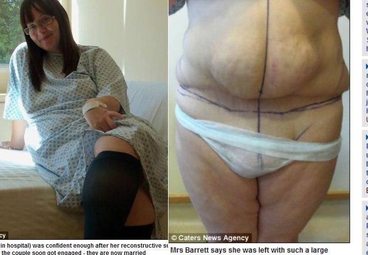 Pele barriga para retirada da de cirurgia