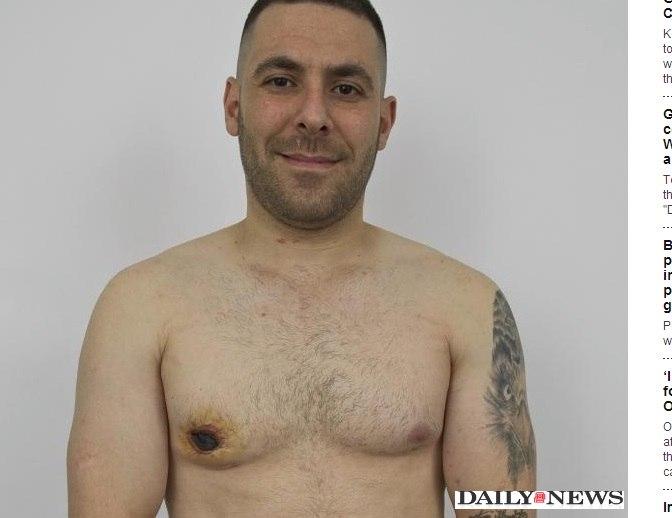 """Desesperado, homem tenta cortar seio feminino que """"brotou"""" em seu corpo"""