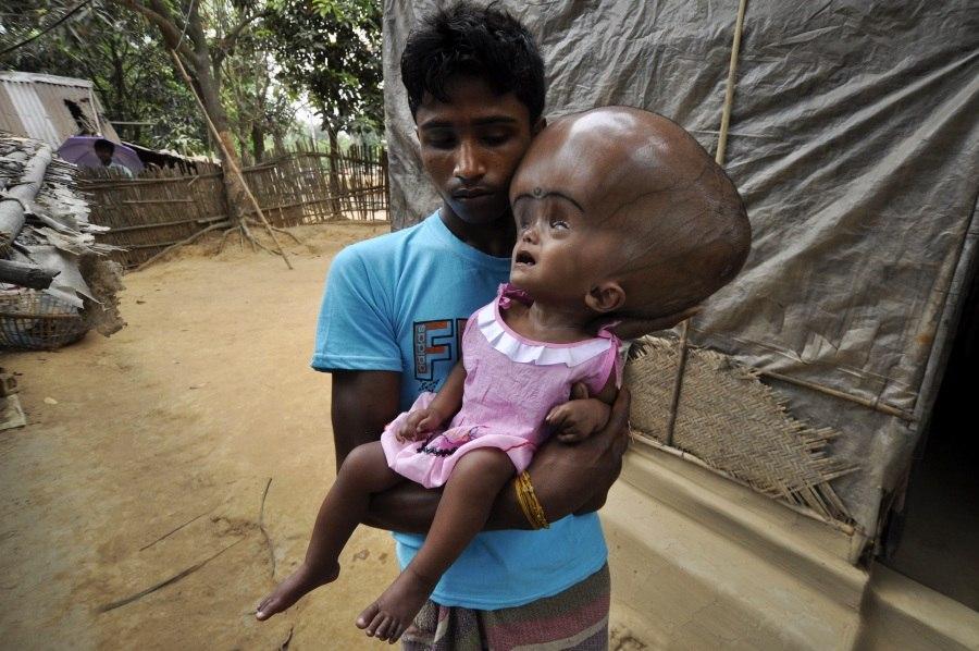 Menina com hidrocefalia volta a ser operada na Índia