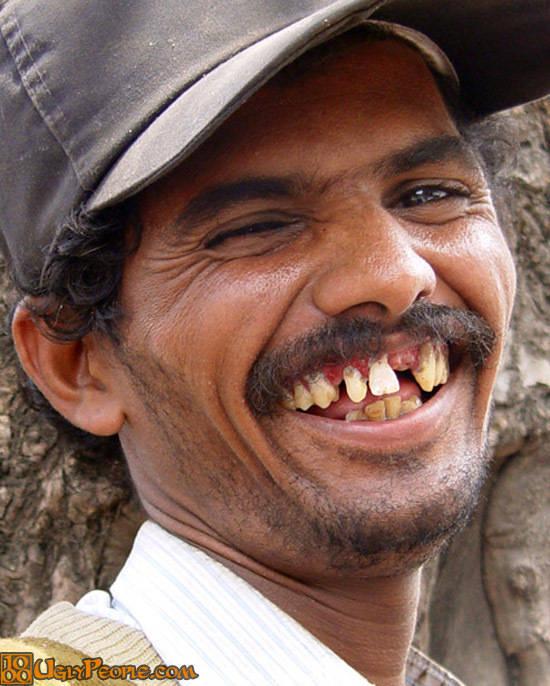 No falte no dentista veja os donos dos sorrisos mais feios do no falte no dentista veja os donos dos sorrisos mais feios do mundo fotos r7 hora 7 altavistaventures Image collections