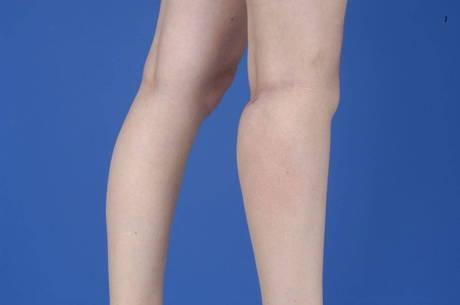 Músculo do da panturrilha da tração inchaço