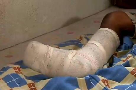 O menino vai ter que passar um mês sem apoiar o pé no chão