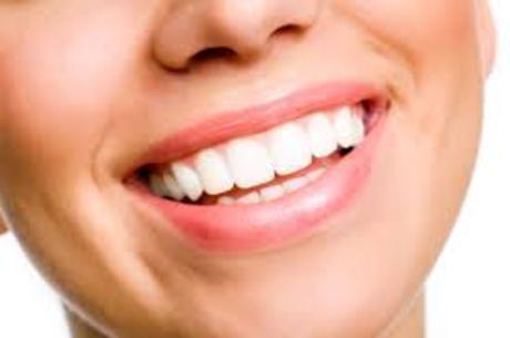 Anvisa Proibe Venda De Clareadores Dentais Sem Prescricao Noticias