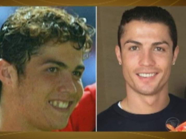 Antes E Depois Veja Os Dentes Dos Famosos Que Passaram Por