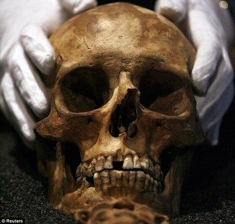 A história não é muito diferente do homem que teve o esqueleto  encontrado em 2012, cerca de 15 anos depois da própria morte e ainda  vestindo pijamas