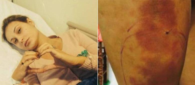 Andressa Urach está internada em estado grave na UTI por aplicação de hidrogel e acrílico na coxa