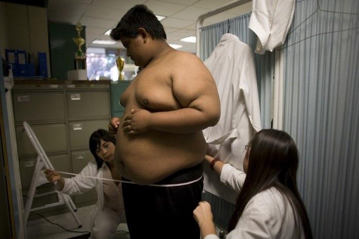 América Latina enfrenta epidemia de obesidade após sucesso na luta contra fome