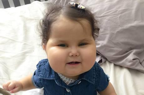 Menina Sofia se recupera de cirurgia nos EUA