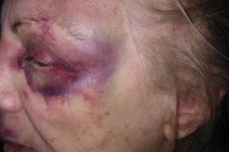 Dona Laura só consegue ficar sentada; ela está com várias marcas roxas pelo corpo