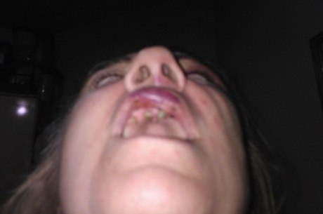 Laura perdeu todos os dentes superiores da boca