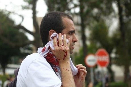 """""""Parece uma praça de guerra!"""", escreveu o prefeito Gustavo Fruet"""