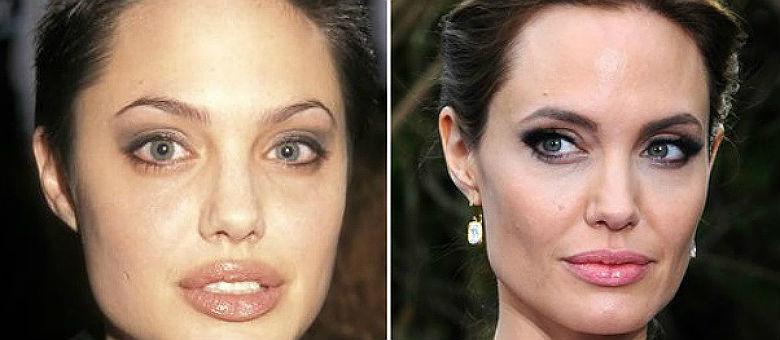 Especialistas afirmam que se a pessoa não teve uma perda de peso aparente, o aspecto fino do rosto indica que a pessoa tenha realizado a cirurgia na bochecha