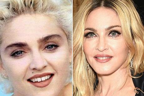 """A bichectomia retira a gordura da bochecha e """"emagrece"""" o rosto"""