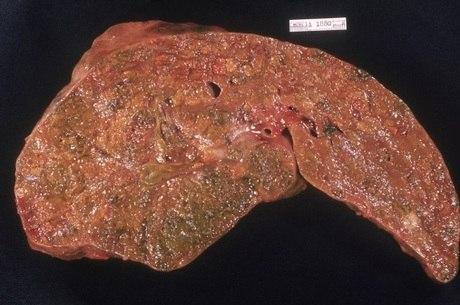 Imagem mostra um fígado com hepatite