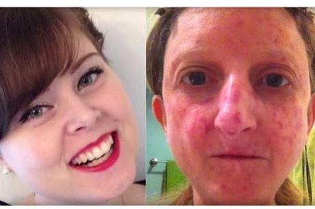 """Mulher sofre com doença que """"endurece"""" a pele por excesso de colágeno no corpo e teve foto proibida no Facebook"""