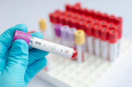 Apesar de não apresentar sintomas, portador do vírus poderá ransmitir o HIV a qualquer outra pessoa