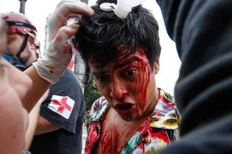 Manifestante recebe socorro durante o último protesto