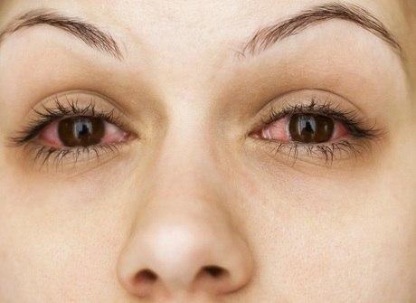 Coçar os olhos e compartilhar a maquiagem aumentam riscos