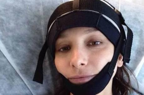 Sabrina usou a touca hipotérmica durante a quimioterapia