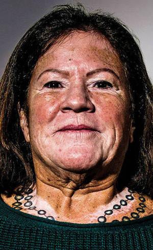 Índia tem vitiligo, aos 60 anos