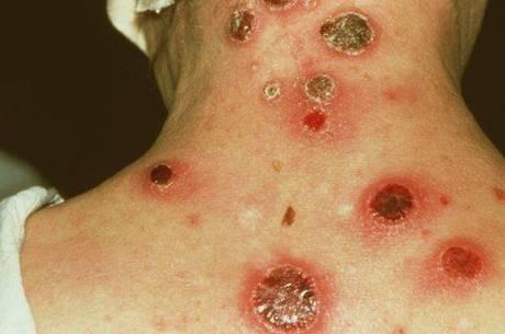Cancros são um dos sintomas da doenças, mas seu desaparecimento não indica cura