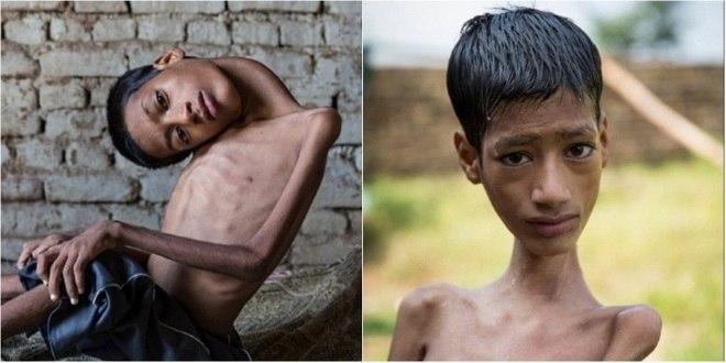Menino morre 8 meses aps cirurgia para desentortar pescoo ele anterior um menino indiano de 13 anos que nasceu com a cabea em ngulo de 180 thecheapjerseys Choice Image