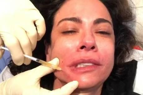 Luciana Gimenez repete lifting de vampiro feito em 2014