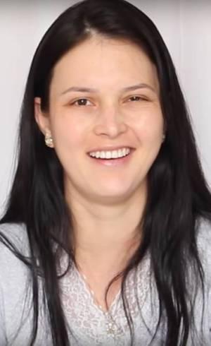 Julia Doorman sofreu paralisia de Bell uma semana após o nascimento da filha
