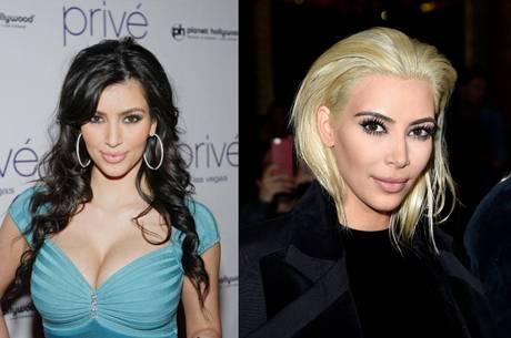 A empresária Kim Kardashian antes e depois da bichectomia