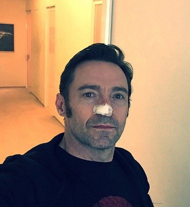 Hugh Jackman é operado a um cancro na pele... pela sexta vez!