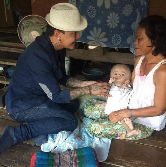A menina, cuja família vive na província de Sa Kaeo, foi severamente incapacitada desde o nascimento. Joon, como é conhecida, nasceu com uma cabeça muito grande
