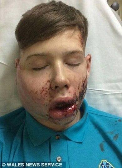 Um menino de 15 anos foi violentamente atacado depois de ter saltado do ônibus, quando caminhava até a escola. O bullying ocorreu em Bridgend, no sul do País de Gales