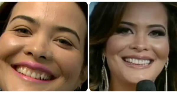 90a4fb13c Geisy Arruda passa pela sexta cirurgia na gengiva - R7 Diversão - R7 TV e  Entretenimento