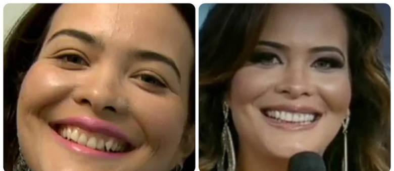 be3ea372e Sorriso de Geisy Arruda antes e depois da colocação das lentes de contato  nos dentes