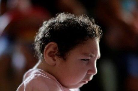 Crianças com zika podem apresentar  cegueira, glaucoma e estrabismo