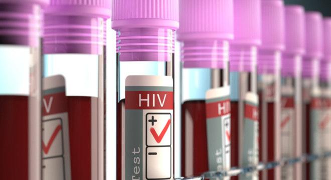 A vacina teve sucesso contra diferentes subtipos do vírus HIV
