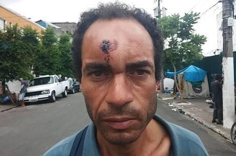 """""""Davi matou Golias com uma pedra a menos de 30 metros de distância"""", diz Alexandre de Oliveira Santos. Usuário que mora na cracolândia, ele quer saber se a bala de borracha que recebeu da polícia militar seria capaz de matá-lo"""