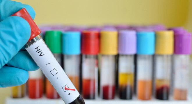 Brasil é um dos países precursores em prevenção e tratamento de HIV