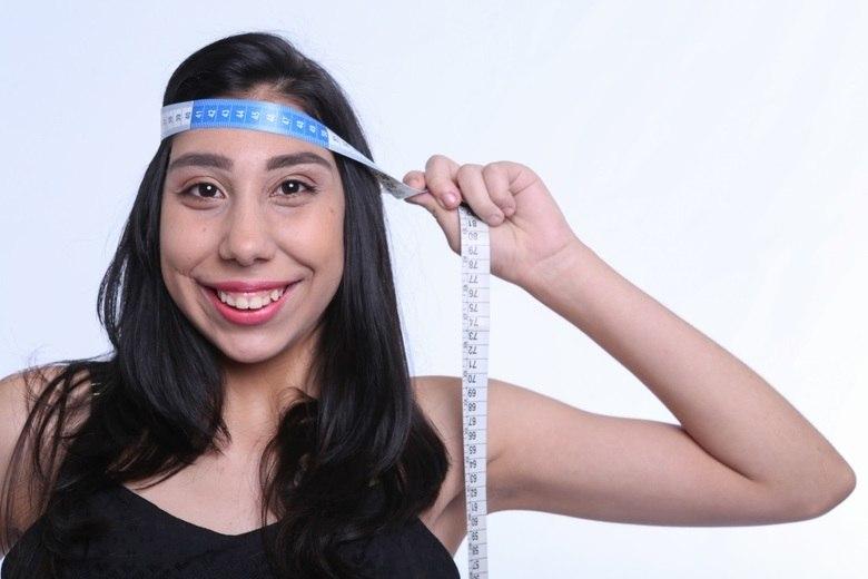 Ana Victória Lago, de 17 anos, tem microcefalia. Ela lutou contra as dificuldades impostas pela doença e tornou-se modelo