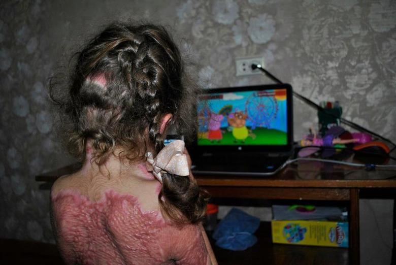 """Crianças estão sofrendo queimaduras horríveis na Rússia apósserem vítimas de um jogo que está sendo reproduzido na internet e que promete torná-las""""fadas de fogo"""".Sofia Ezhova, de apenas cinco anos, foi uma das vítimas eficou gravemente queimada depois de ligar o forno a gás de sua casa, enquantojogava o jogo"""