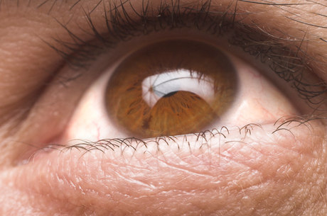 fe3278aed Glaucoma tem desenvolvimento silencioso e pode levar à cegueira; tratamento  abrange desde o uso de