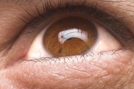 Glaucoma tem desenvolvimento silencioso e pode levar à cegueira; tratamento abrange desde o uso de colírios até a cirurgia